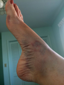 Right Foot next day